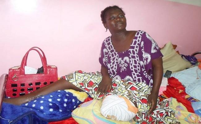 Amputée d'une jambe après les attentats terroristes de 2015 au Tchad, une infirmière lance un appel aux dons pour financer une prothèse